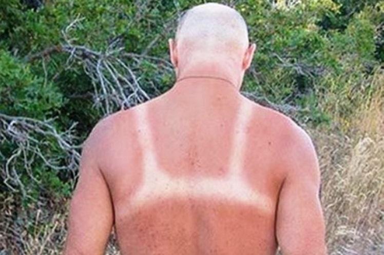 """50 уморительных фото из серии """"не спите на пляже"""" или """"неудачный загар"""""""